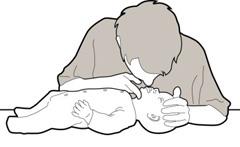 Baba elsősegély - mesterséges lélegeztetés